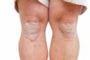 Weight loss can reduce psoriasis symptoms in the long term, study finds